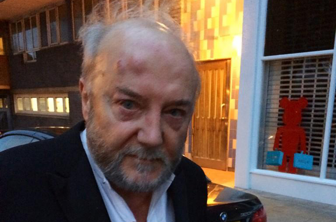 George Galloway 'beaten over Israel comments'